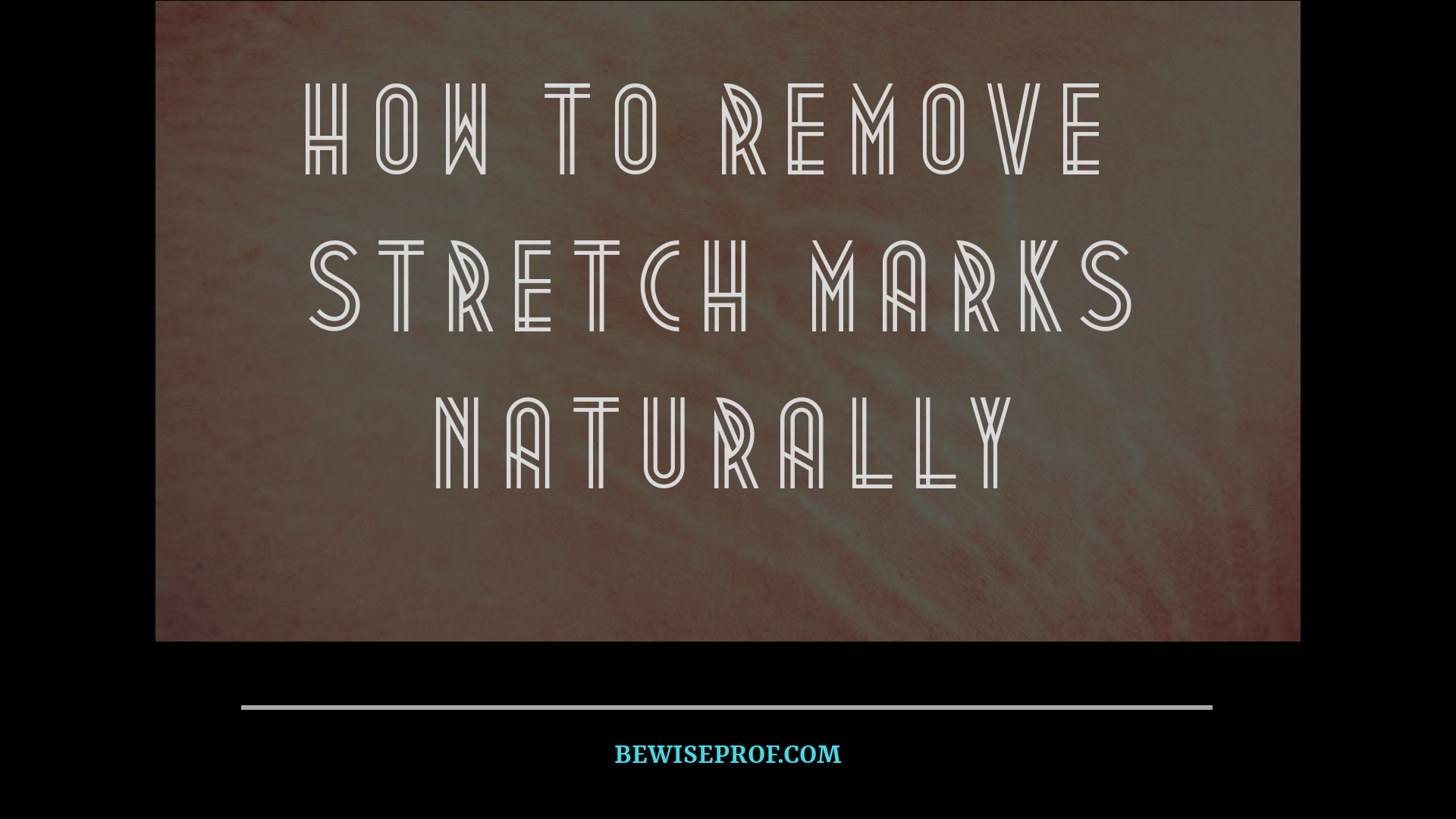 Photo of How To Remove Stretch Marks Naturally
